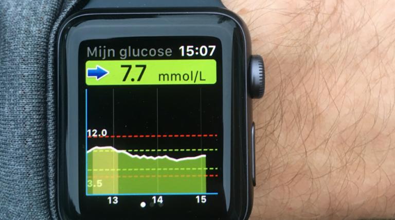 Continue glucosesensor Eversense XL