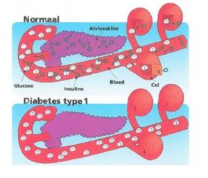 Uitleg van diabetes